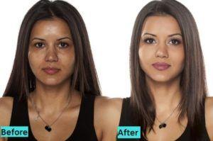 Glutathione Skin Whitening Injections in Dubai & Abu Dhabi