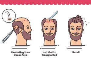 Harvesting Hair Transplant in Dubai.
