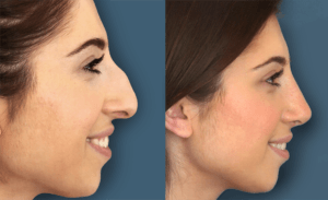 Rhinoplasty Nose Surgery in Dubai, Abu Dhabi