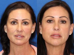 Lip Reduction Surgery in Dubai, Abu Dhabi & Sharjah