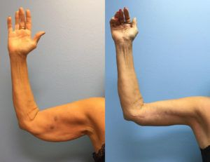Arm Lift Surgery in Dubai, Abu Dhabi & Sharjah