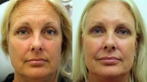 Botox Injections in Dubai Abu Dhabi