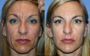 Botox Injections in Dubai Sharjah