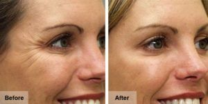 Botox Injections in dubai abu Dhabi & Sharjah