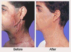 Burn Reconstructive Surgery in Dubai Abu Dhabi & Sharjah