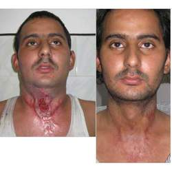 Burn Reconstructive Surgery in Dubai & Abu Dhabi