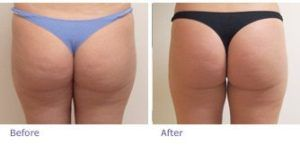 Buttock Augmentation Dubai & Sharjah
