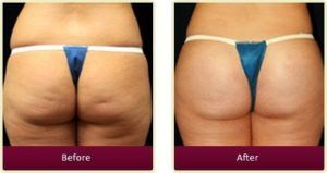 Buttock Augmentation in Dubai Abu Dhabi & Sharjah