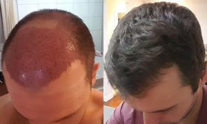 FUT Hair Transplant in Dubai