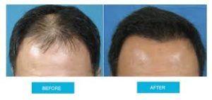FUT Hair Transplant in Dubai Abu Dhabi & Sharjah