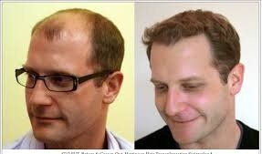 FUT Hair Transplant in Dubai Sharjah