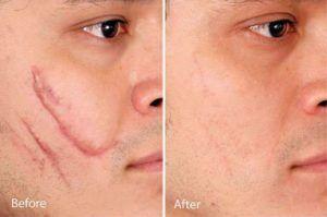 Facial scar Revision in Dubai, Abu Dhabi & Sharjah