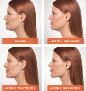 Kybella Treatment for Double Chin in Dubai, Abu Dhabi & Sharjah
