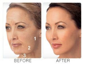 Liquid Facelift in Dubai, Abu Dhabi & Sharjah