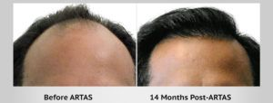 Robotic Hair Transplant in Dubai