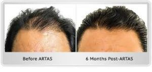 Robotic Hair Transplant in Dubai Abu Dhabi