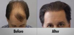 Robotic Hair Transplant in Dubai Sharjah