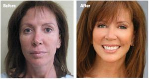 Stem Cell Facelift in Dubai, Abu Dhabi & Sharjah