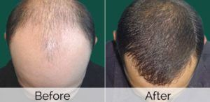 Stem Cell Hair Transplant in Dubai