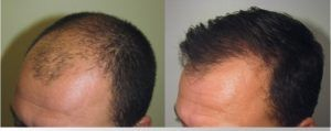 Stem Cell Hair Transplant in Dubai & Abu Dhabi