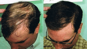 Stem Cell Hair Transplant in Dubai & Sharjah