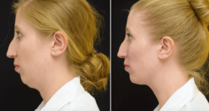 Double Chin Removal Abu Dhabi & Sharjah
