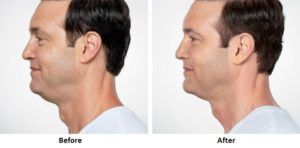 Double Chin Removal Dubai & Abu Dhabi, Sharjah