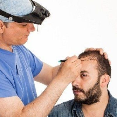 FUE Hair Transplant in Dubai Abu Dhabi Sharjah