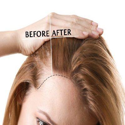 PRP Hair Treatment in Dubai Abu Dhabi Sharjah