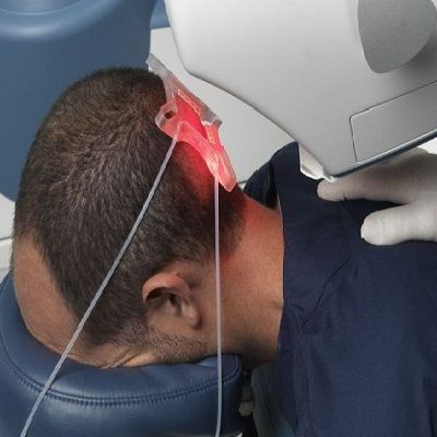Robotic Hair Transplant in Dubai Abu Dhabi Sharjah