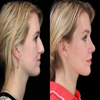 Chin Augmentation in Dubai, Abu Dhabi & Sharjah