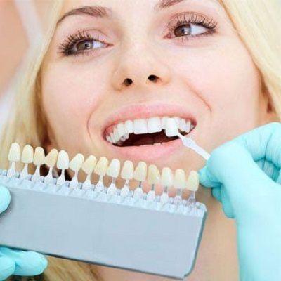 Dental Implants in Dubai, abu dhabi & sharjah