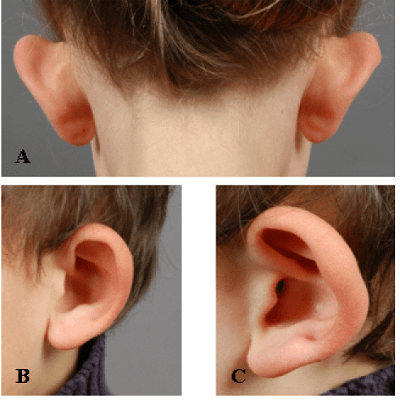 Ear Surgery or Otoplasty in Dubai Abu Dhabi & Sharjah