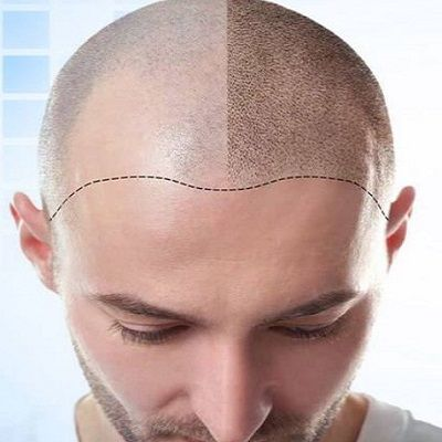 FUT Hair Transplant in Dubai & Abu Dhabi