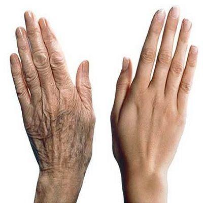 Hand Rejuvenation Surgery in Dubai, Abu Dhabi & Sharjah
