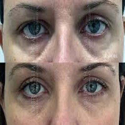 Plexr Plasma Eye Lift in Dubai, Abu Dhabi & Sharjah