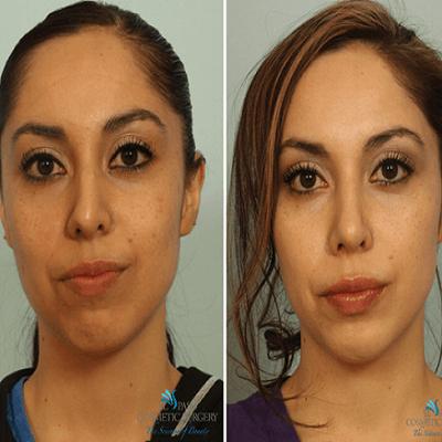 Broken Nose Surgery Treatment Dubai & Abu Dhabi