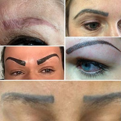 Eyebrow Laser Tattoo Removal in Dubai, Abu Dhabi & Sharjah