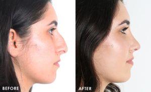 Nose Tip Plasty in Dubai