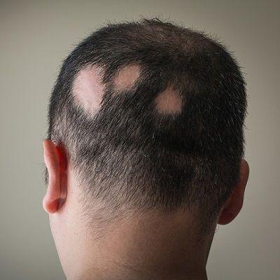Alopecia Areata Treatment in Dubai, Abu Dhabi & Sharjah
