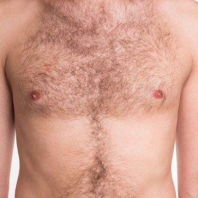 Body Hair Transplant in Dubai & Abu Dhabi