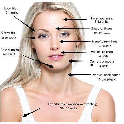 Botox Injection Cost in Dubai, Abu Dhabi & Sharjah