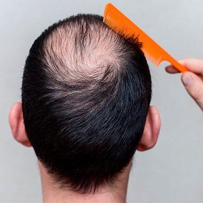 Crown Hair Transplant in Dubai & Abu Dhabi