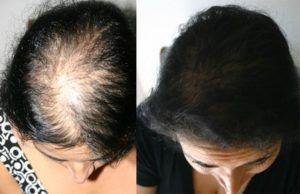Female Hair Transplant in Dubai, Abu Dhabi & Sharjah