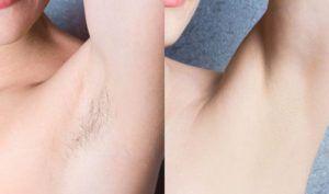 Laser Hair Removal in Dubai & Abu Dhabi