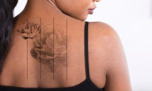 Laser Tattoo Removal in Dubai, Abu Dhabi & Sharjah