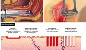 Laser Vaginal Tightening Treatment Dubai & Abu Dhabi