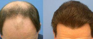 PRP for Hair Loss in Dubai, Abu Dhabi & Sharjah
