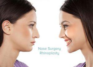 Rhinoplasty Nose Reshaping in Dubai, Abu Dhabi & Sharjah