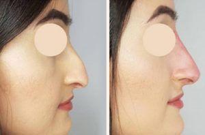 non surgical nose job in dubai